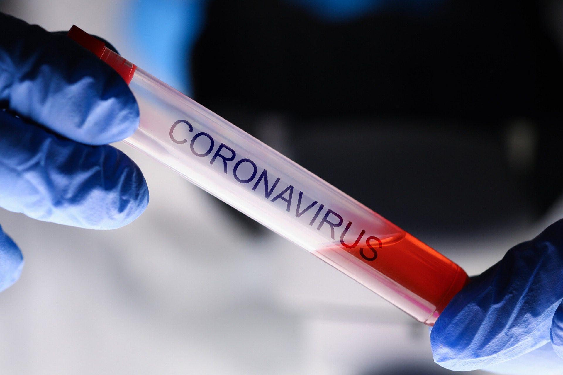 Reisen in Zeiten des Corona Virus